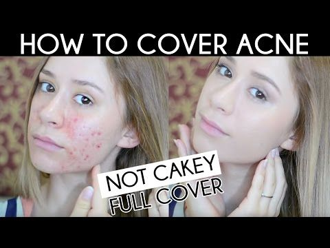 HOW TO COVER ACNE SCAR | Not Cakey Acne Coverage Foundation Routine - https://www.avon.com/?s=ShopTab&c=repPWP&otc=201618&repid=16581277&setlang=en Acne Solutions    ACNE TREATMENT TIPS FOR ADULT ACNE SUFFERERS https://www.youtube.com/watch?v=T3UXXryyico