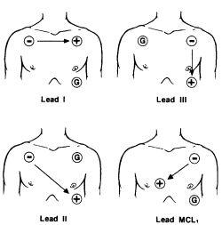 3 Lead Ekg Wiring Diagrams