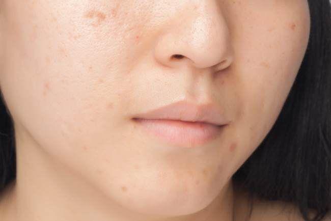 Cómo aclarar la piel utilizando bicarbonato de sodio y miel