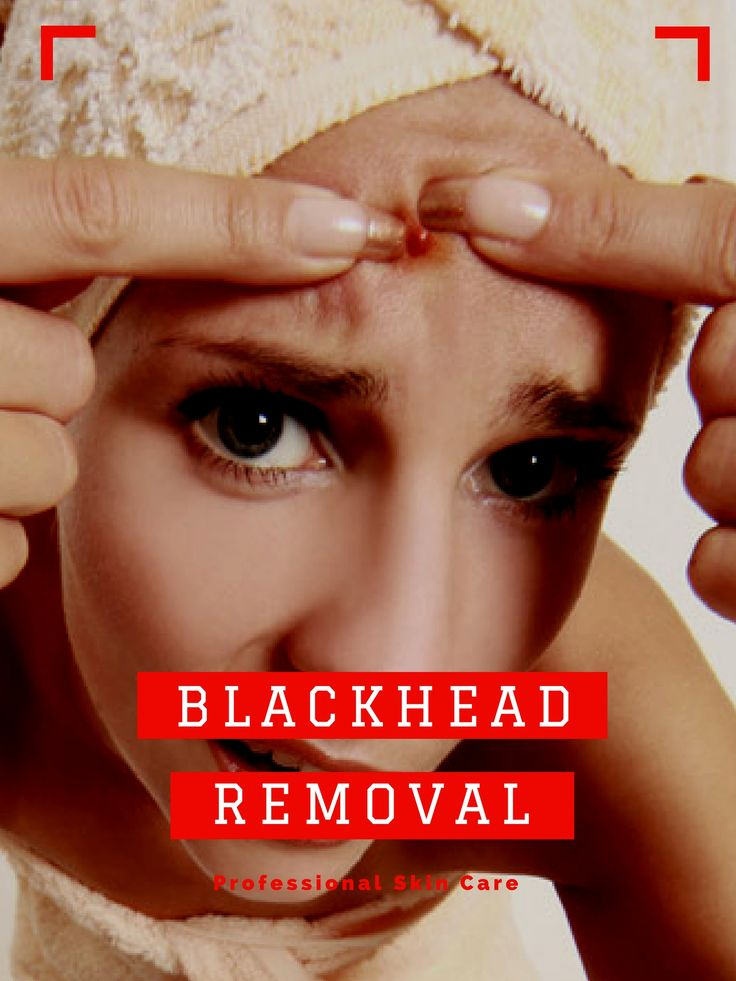 Put your blackheads to the test! Tired of your blackheads? Want to get rid of your impurities once & for all? The qualified blackhead removal tool in this submission is the solution... You'll receive all these benefits: 1.Suction strength is adjustable; 2. unique technology removes blackheads fast, without causing any pain or living skin marks; 3. Skin is left smoother, clearer, with less fine lines... Can you think of any reason not to send for your blaackhead removal?