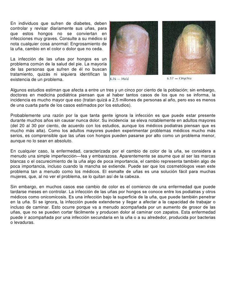 diabetes engrosamiento de las uñas de los pies