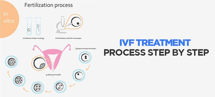 IVF Treatment Process Step by Step  IVF treatment process includes steps that are scheduled in accordance to the menstrual cycle and #ovulation of the #patient.   Visit our blog- http://www.medicoverfertility.com/blog/ivf-treatment-process-step-by-step/ for more details.  For #IVF Consultation Call Now: +91 7291991719  #MedicoverFertility #ThinkFertilityThinkMedicover