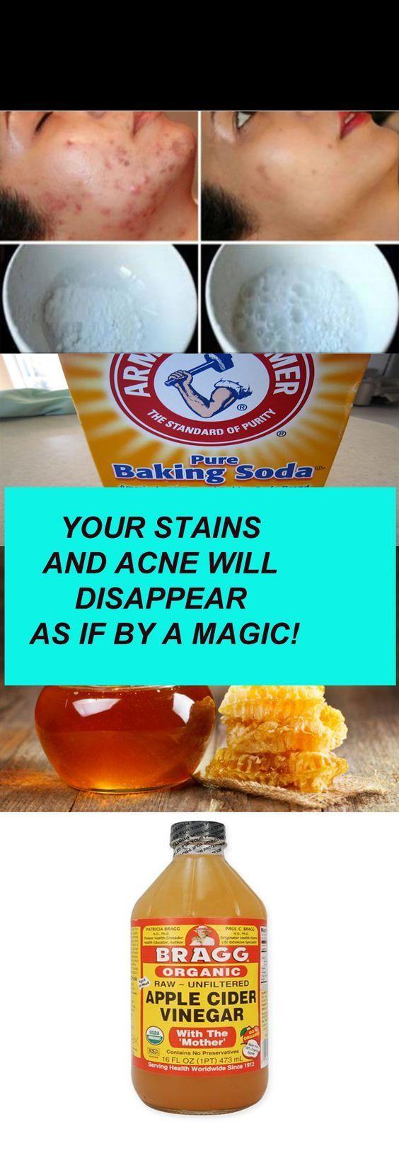 sodium bicarbonate Apple vinager 1/2 lemon honey