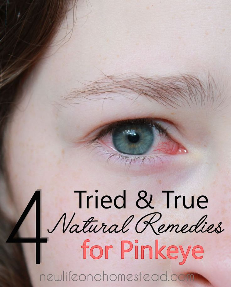 how to prevent pink eye before it starts