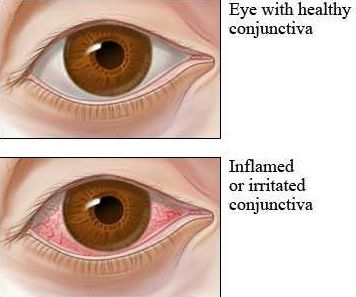 Conjunctivitis Causes, Symptoms And Types