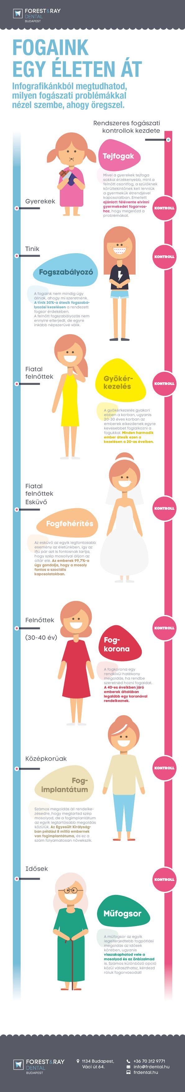 A fogaink minden életszakaszban más törődést igényelnek. Infografikánkból megtudhatod, milyen kezelések jellemzőek az életkorodra. #fogorvos #fogászat #fog #öregedés