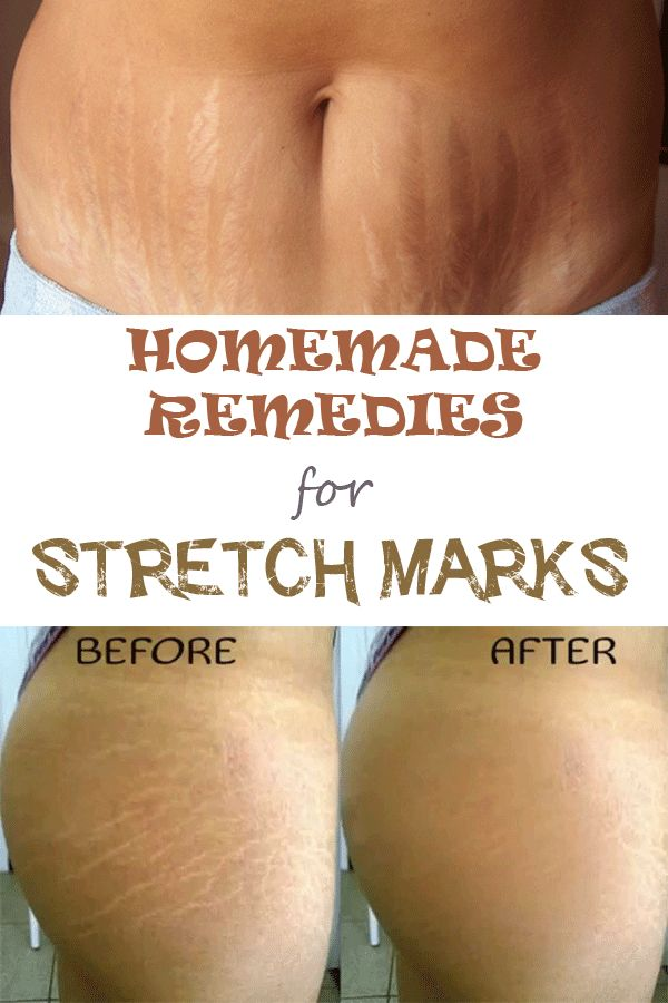 While I have no issues with how my stretch marks looks, these tips would be nice for firming up my skin a bit.  Here you can find some natural tips that can help you get rid of them!