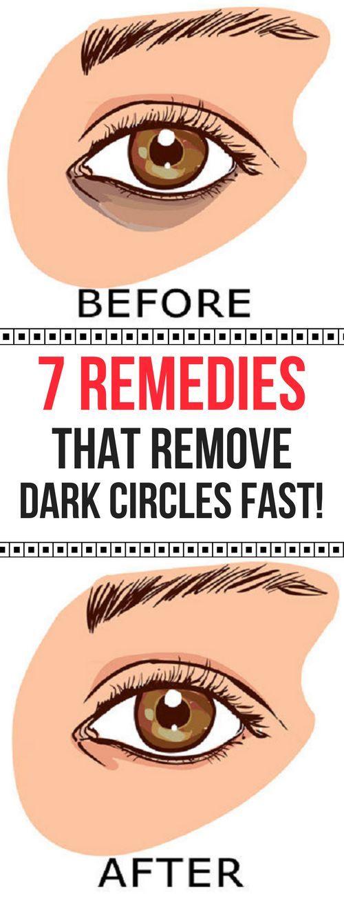 7 REMEDIES THAT REMOVE DARK CIRCLES FAST!
