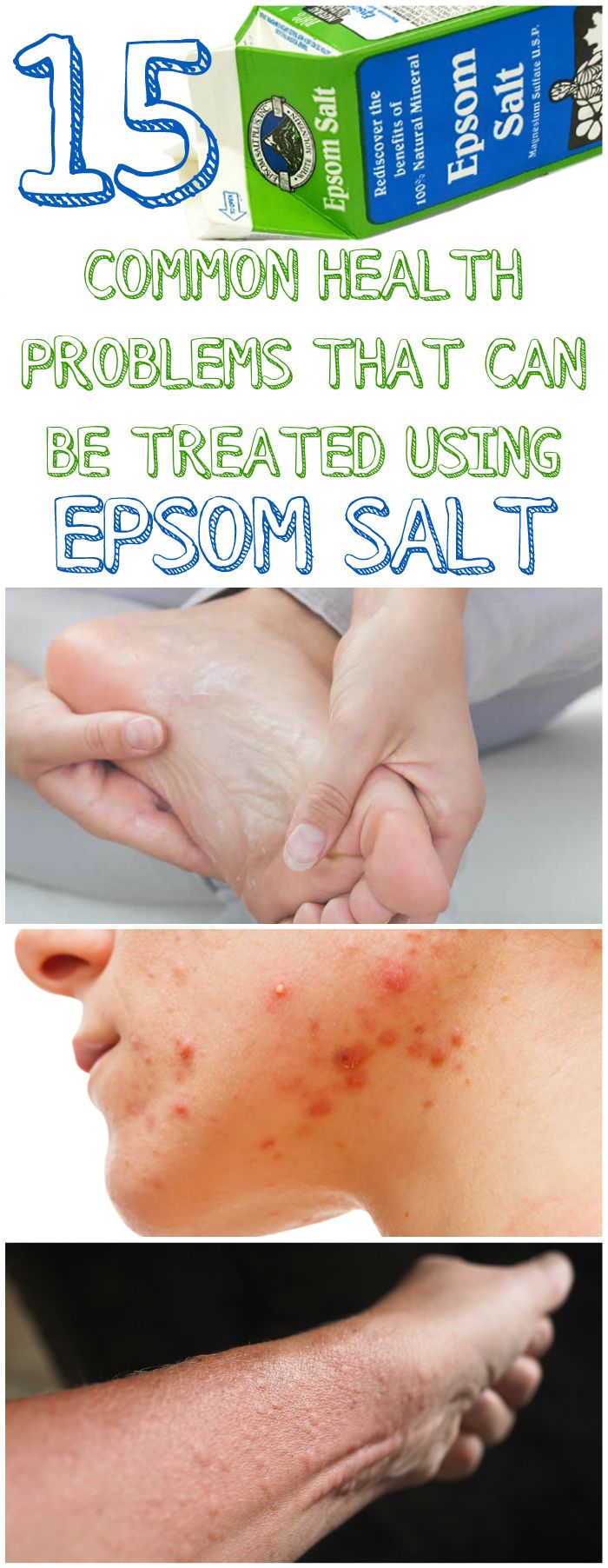 Question: When is salt, not salt? Answer: When it's Epsom Salt! – you see Epsom Salt is not really salt at all – its chemical name is magnesium sulfate – a mixt