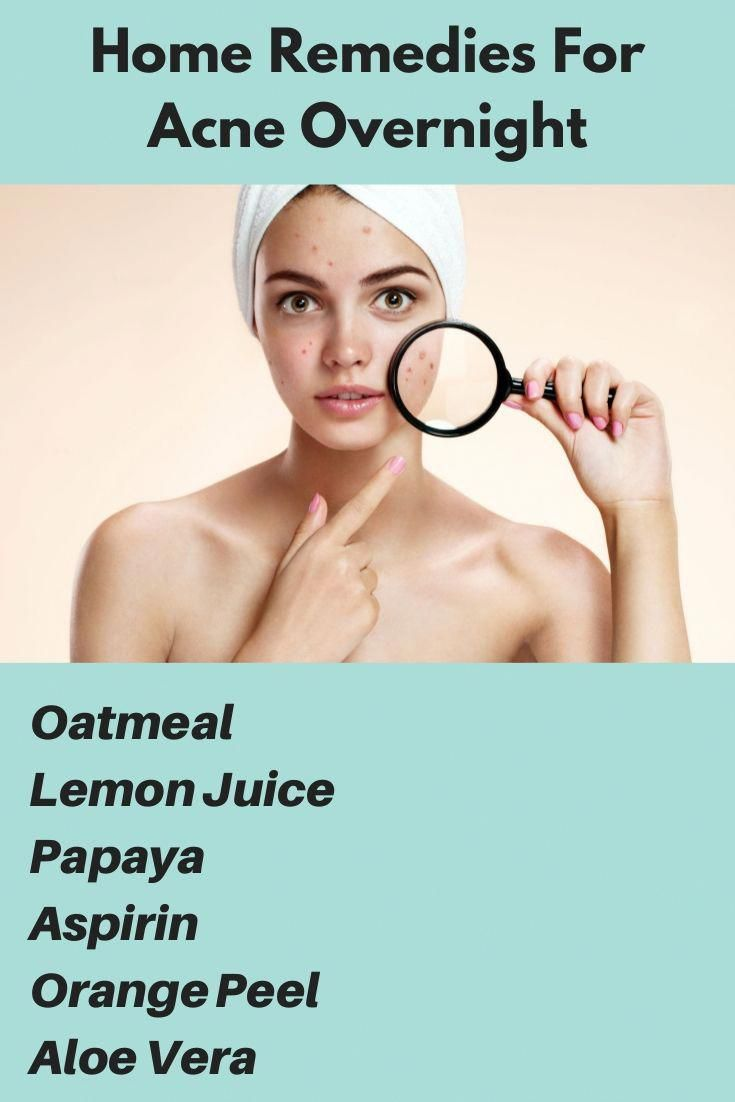 Belly piercing over scar tissue  Most Useful Home Remedies To Get Rid Acne Fast acnescars acne