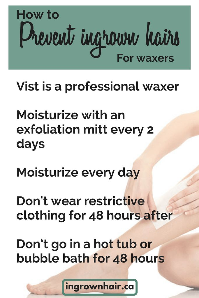 """""""No matter what method you choose for hair removal it is imperative that you follow a few rules in order to prevent ingrown hairs. Prevent ingrown hairs with a few easy tips."""""""