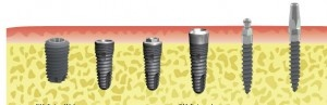 Dental implants in Las Vegas provide affordable and general dentistry services to bring a good smile upon the face of people back again with a shining set of teeth.