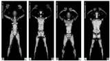 Which Airports Have Full BodyScanners?
