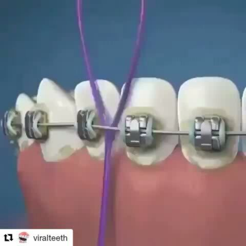 Lo importante de una buena limpieza  #Repost @viralteeth (@get_repost)     #teeth#tooth#toothless#extraction#cirugiabucal#oralsurgery#dental#dentist#dentistry#matteonegri#dentalhygiene#dentalassistant#dentalschool#dentalstudent#dentalhygiene#implant#implants#odonto#odontogram#odontologo#odontolove#odontología#odontologia#odontogram#odontoporamor#estomatología#prosthesis #vitalemedicinadental