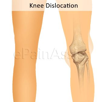 Knee Dislocation or Dislocated Knee Read: http://www.epainassist.com/sports-injuries/knee-injuries/knee-dislocation-or-dislocated-knee-its-symptoms-causes-treatment-options