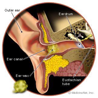 Kết quả hình ảnh cho Causes of earwax build up