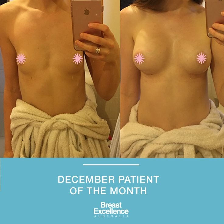 """""""I am so HAPPY with my results!! Even 3-4 days post-op far exceeded my expectations and they get better and softer literally every day. I can't believe that they already look really natural and I am so excited to see how they'll look in another few months."""" Siobhan, December Patient of the Month. #cosmeticsurgery"""