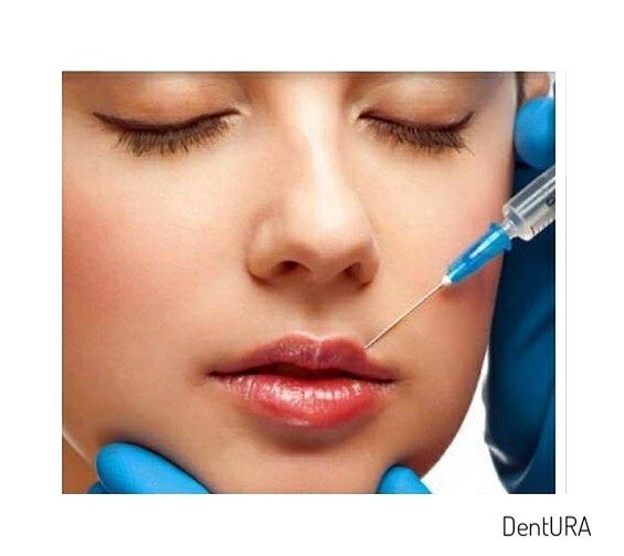 Fillers and latest trend Botox Lip Flip | | | | #teeth #dental #odontologia #dentistry #braces #dentalschool #dentalassistant #dentalhygienist #dentalhygieneschool #teethwhitening #cosmeticdentistry #cosmeticsurgery #toothfairy #implants #dentures #rootcanal #odonto #smile #whiteteeth #cavity #cloves #aboutdentistry #dentist #dentista #tooth #medical #dentalhygiene #doctor #health