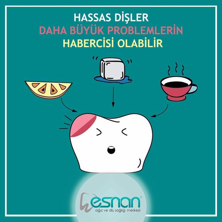 Diş hassasiyeti problemleriniz için şubelerimize bekleriz...www.esnan.com.tr  #hassasdişler #esnan #diş #dişsağlığı #dentalhospital #dişkliniği #dişhekimi #dentist #istanbuldiş