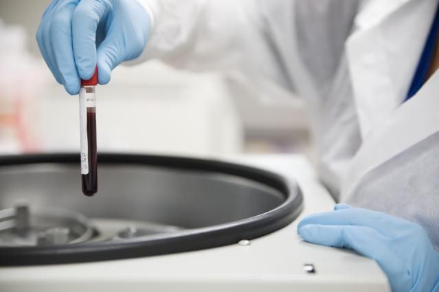 An ANA test is a blood test used to detect the presence of the antinuclear antibody which is associated with several autoimmune diseases.