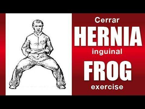 Cerrar Hernia inguinal sin cirugía: Curar hernia inguinal