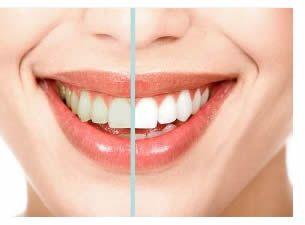 Lo #sbiancamento permette di riportare il colore della dentatura all'antico biancore, schiarendo in alcuni casi leggermente le tonalità naturali.