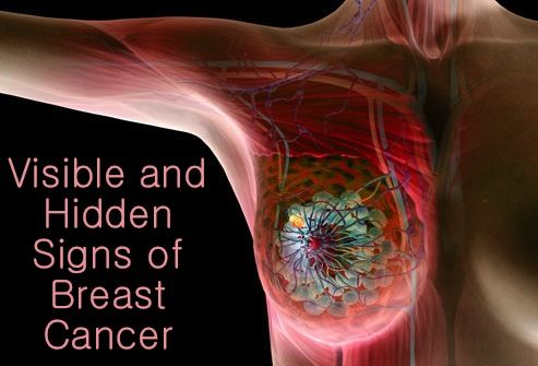 Educate yourself on spotting... Visible and Hidden Signs of Breast Cancer