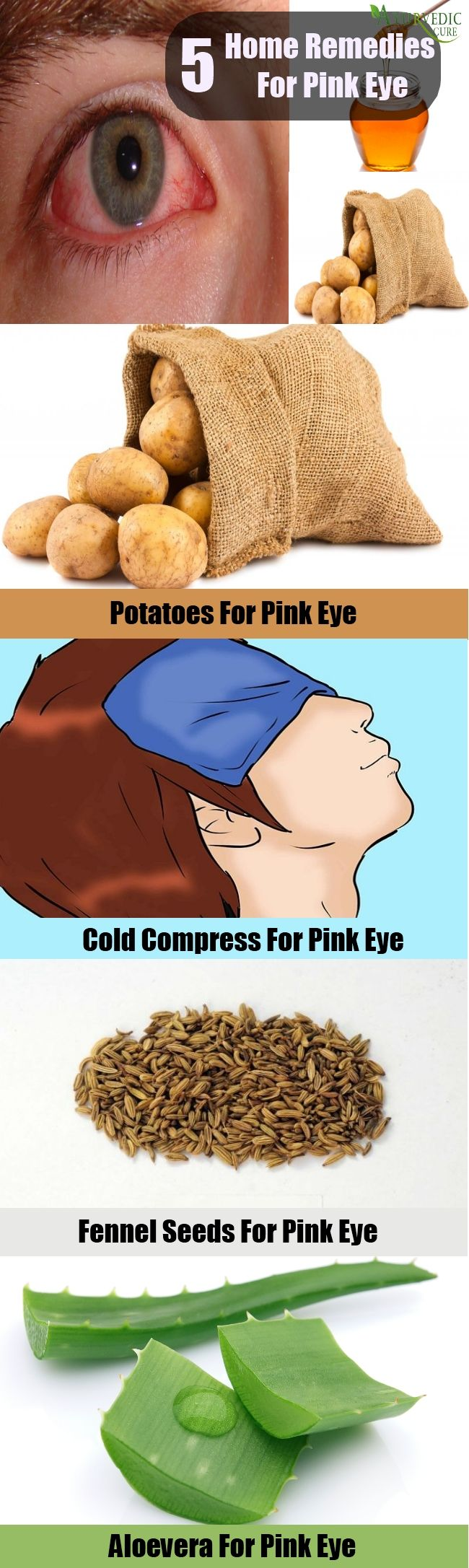 5 Effective Home Remedies For Pink Eye