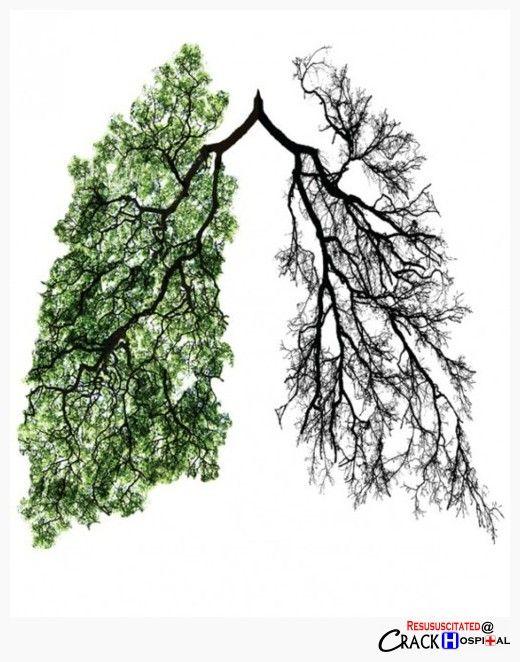Lung Tree #Respiratory Therapist