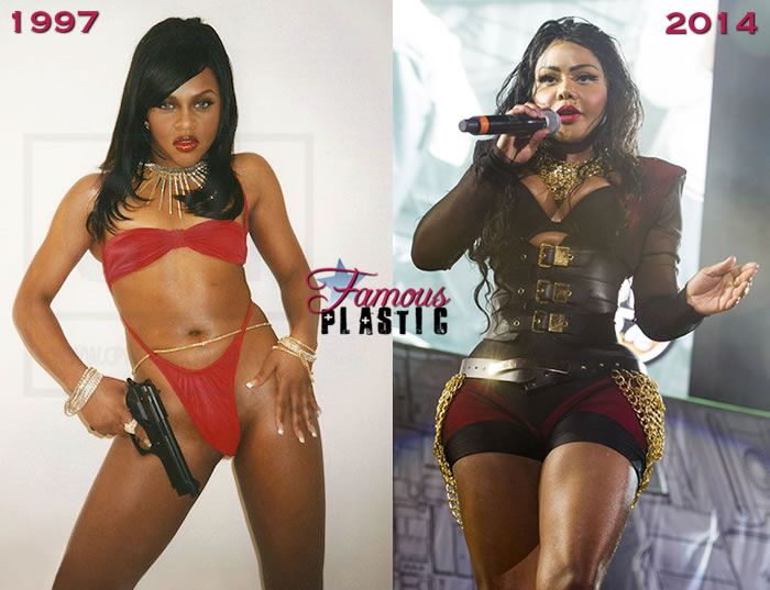 Lil Kim Has Never Had Plastic Surgery, You Guys…