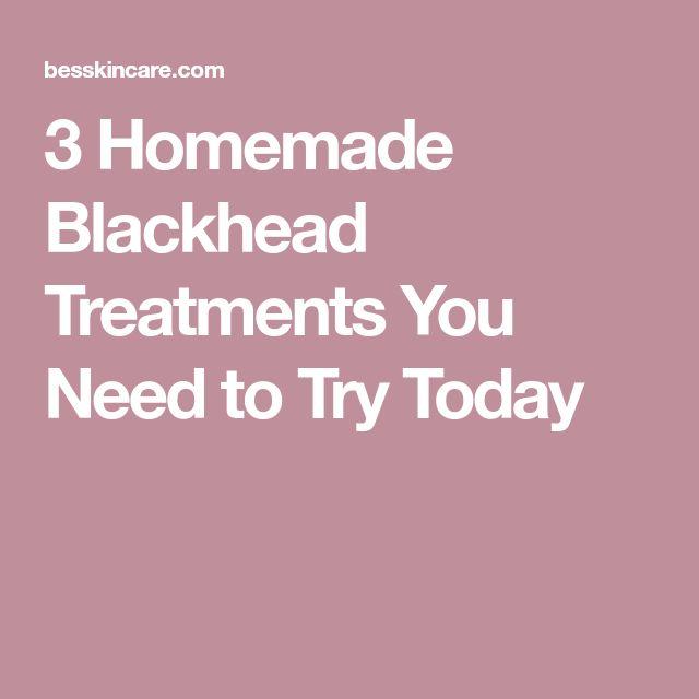 3 Homemade Blackhead Treatments You Need to Try Today