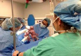 12-May-2014 5:29 - BABY'S HAND IN HAND GEBOREN. In de Amerikaanse staat Ohio is een bijzondere tweeling geboren. De twee meisjes deelden niet alleen hetzelfde vruchtwater, maar ook dezelfde placenta. Dit gebeurt gemiddeld maar een keer per 10.000 zwangerschappen van een tweeling. De tweeling werd vrijdag na 33 weken zwangerschap gehaald via een keizersnede. Toen de artsen de baby's omhoog hielden om ze aan hun ouders te laten zien, hielden de twee meisjes elkaars handje vast. Jenna en...