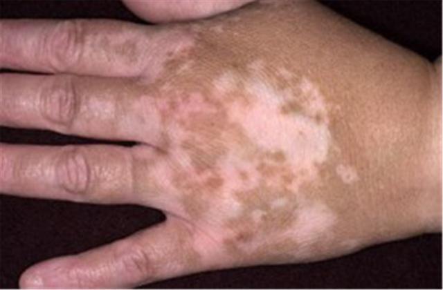 Vitiligo and Autoimmune Thyroid Disease: The Link