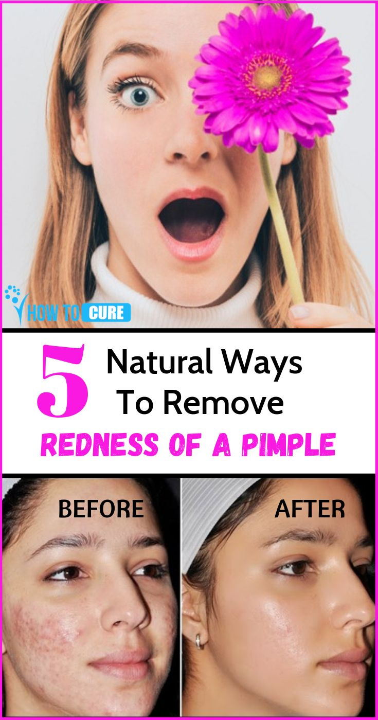 how to get rid of red spots on face fast
