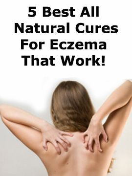Read our list of 5 simple yet best all natural cures for eczema you won't believe that work, especially when combined together #Natural #Cures #Eczema #cryotherapy #skin #health