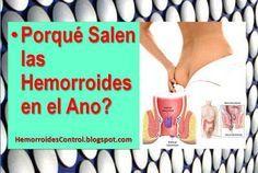 Porqué Salen las Hemorroides en el Ano: Cómo Aliviar el Dolor de Hemorroides➡ http://HemorroidesControl.blogspot.com/2016/04/porque-salen-hemorroides-en-el-ano-como-aliviar-dolor.html Hemorroides Control tratamiento natural con remedios caseros.
