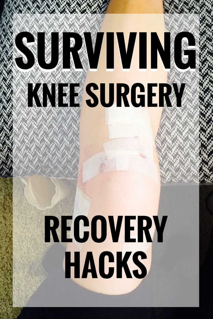 SURVIVING KNEE SURGERY
