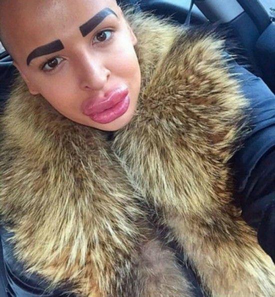 Jordan-James-Parke-chirurgie-esthetique-pour-ressembler-a-kim-kardashian-2