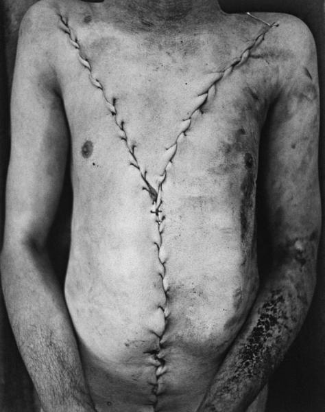 "thetemperamentalgoat: "" Torso, Murdered man, 1972-1974 by Jeffrey Silverthorne. """