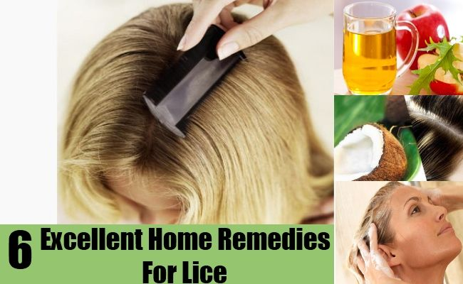 DIY Find Home Remedies - http://www.homeremedyfind.com/6-excellent-home-remedies-for-lice/