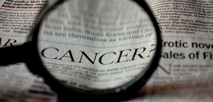 5 tipů, jak zabránit kolorektálnímu karcinomu. Několik praktických tipů jak upravit životní styl, aby došlo ke snížení rizika vzniku rakoviny tlustého střeva.