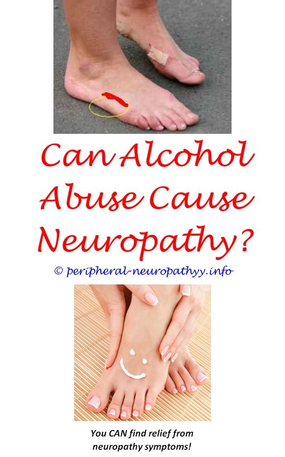 spinal stenosis and peripheral neuropathy - inflammatory demyelinating neuropathy symptoms.emg sciatic neuropathy peripheral neuropathy caused by trauma paresthesia neuropathy 3170760429