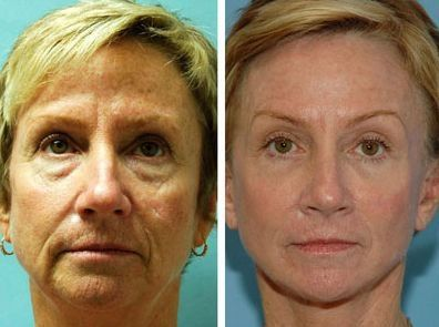 Face Flexing Exercises Will Return Your Face To Prior Years