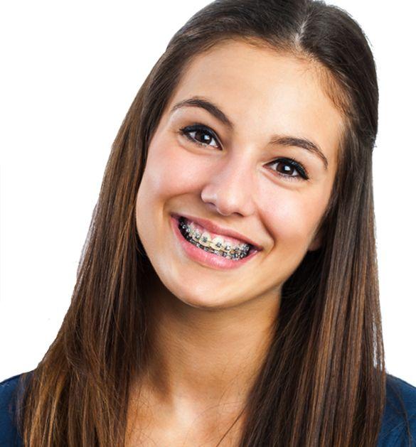 Shannon braces #1