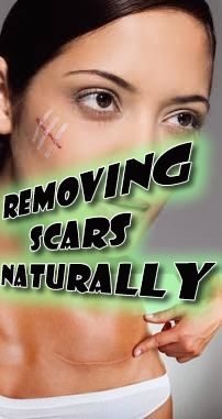 Let's take a look at what both traditional and alternative medicine have to offer us for help with this problem. #skin #scars