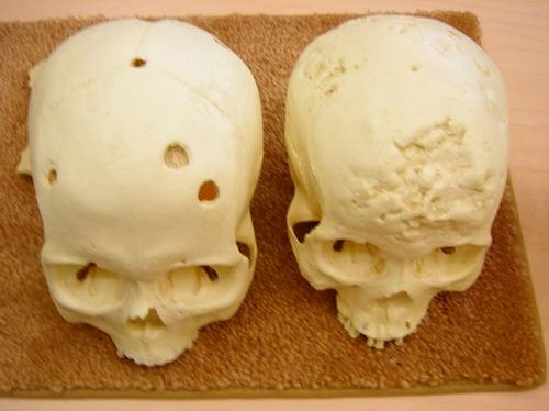 The left is the skull of someone who had tuberculosis, and the right is syphilis. Nasty!