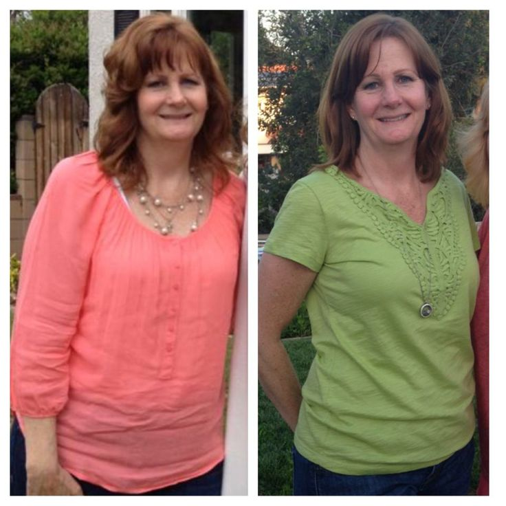 """This is my before and what I'll call my """"during"""", because I'm not done yet. I found some products that have changed my life. Was I a skeptic? Heck yeah, I was. I am so glad I took a chance."""