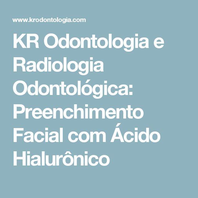 KR Odontologia e Radiologia Odontológica: Preenchimento Facial com Ácido Hialurônico