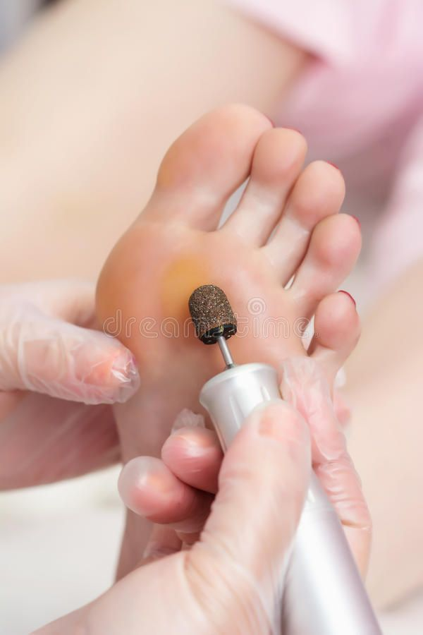 Download Peeling Feet Pedicure Procedure With Eletric Device In The Beau Stock Image - Image: 76382995
