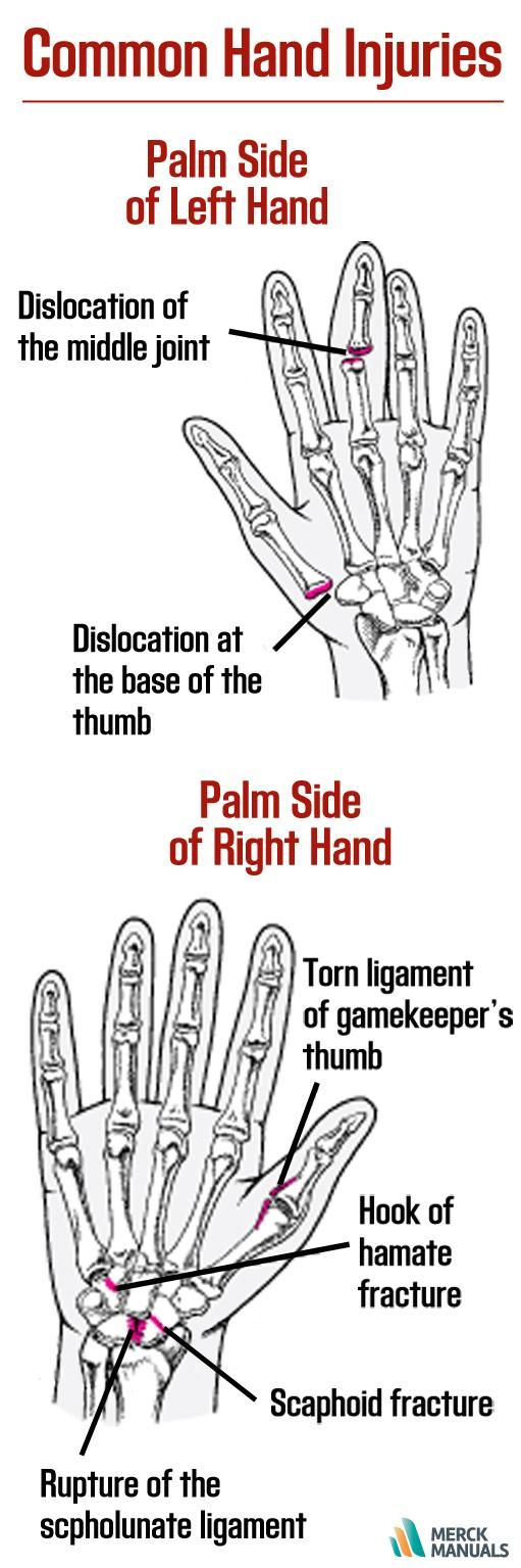 Common hand injuries include broken bones, torn ligaments (called sprains, or ruptures), and dislocated joints. Click to learn more.